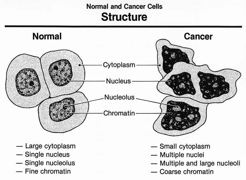 Difference Between Cancer Cells and Normal Cells