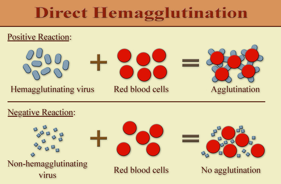 Difference Between Precipitation and Agglutination ...