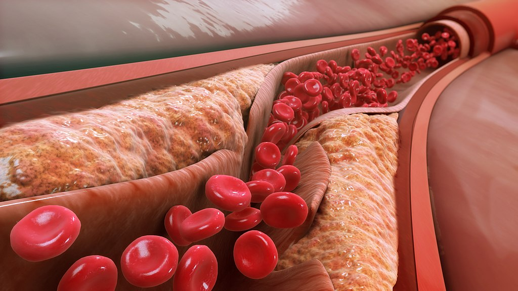 Key Difference - HDL vs LDL Cholesterol