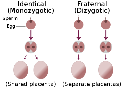Key Difference Between Monozygotic and Dizygotic Twins