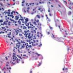 Differences Between Histology and Cytology