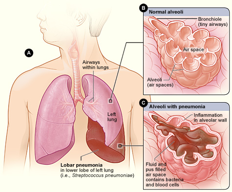 Key Difference Between Right and Left Lung