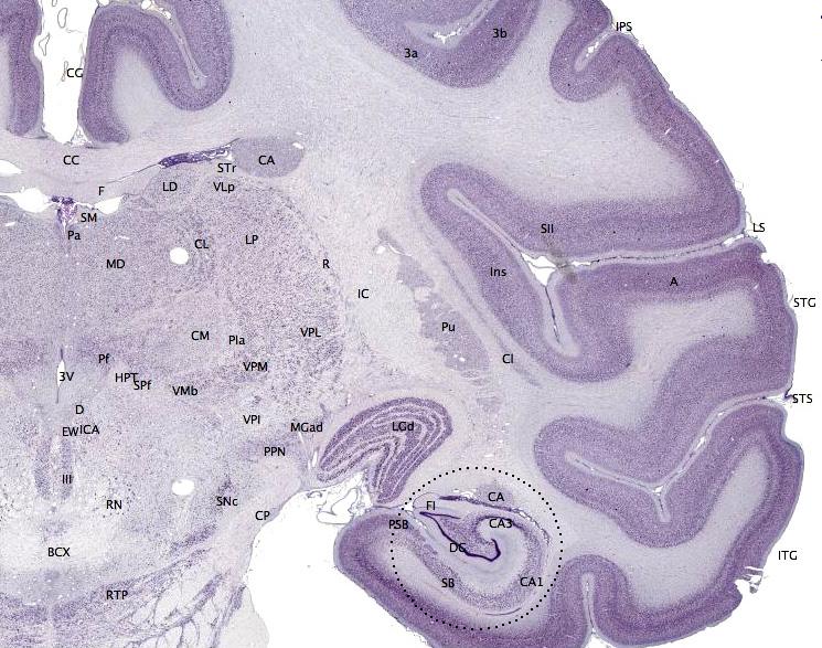 Key Difference - Cerebrum vs Cerebral Cortex