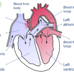 Difference Between Left and Right Side of Heart