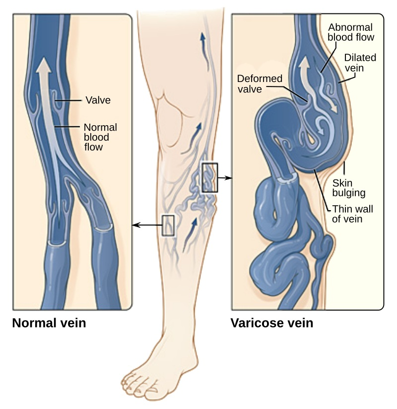 Main Difference - Arterial vs Venous Ulcers