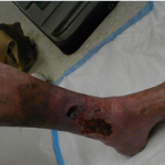 Difference Between Arterial and Venous Ulcers