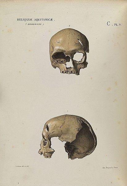 Key Difference - Male vs Female Skull