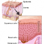 Difference Between Skin Cancer and Melanoma