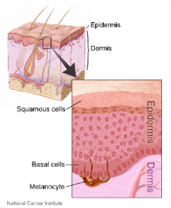 Difference Between Skin Cancers