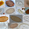 Difference Between Fungi and Parasites