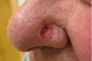 Difference Between Basal Cell Carcinoma and Squamous Cell Carcinoma