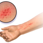 Difference Between Anaphylaxis and Allergic Reaction