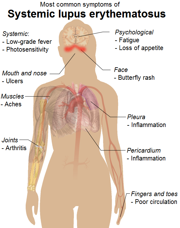 difference between lupus and Fibromyalgia