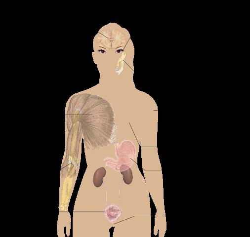 lupus vs. fibromyalgia