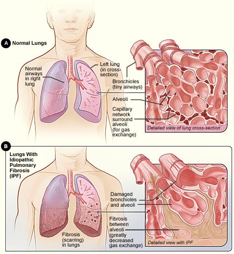 Cystic Fibrosis  vs Pulmonary Fibrosis