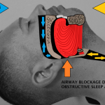 Difference Between Sleep Apnea and Snoring