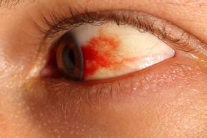 Aneurysm vs hemorrage