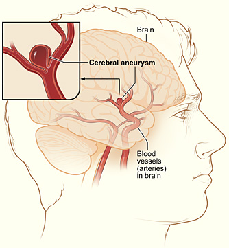 difference between Aneurysm and Hemorrhage
