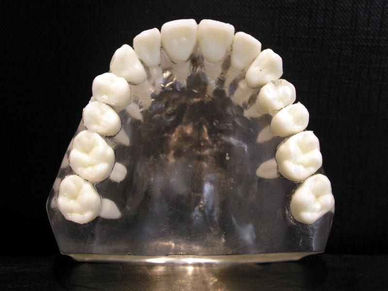 Difference Between Maxillary And Mandibular Molars Maxillary Vs