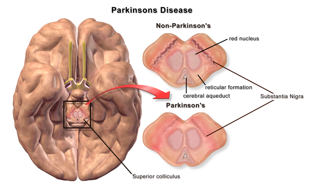 Difference Between Parkinson's and Huntington's Disease