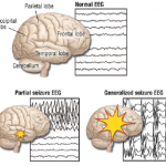 Difference Between Seizure and Epilepsy