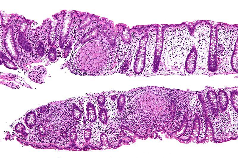 Key Difference - Celiac vs Crohn's Disease