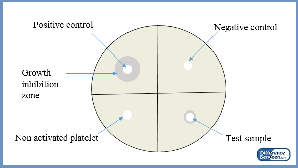 Difference Between Positive and Negative Control