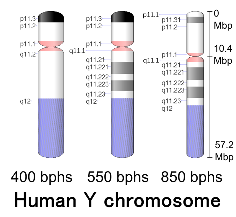 Main Difference - X vs Y Chromosomes