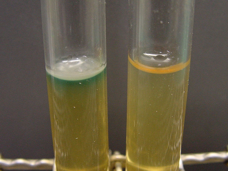 Key Difference -Nutrient Agar vs Nutrient Broth