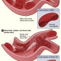 Difference Between Sickle Cell Disease and Sickle Cell Anemia