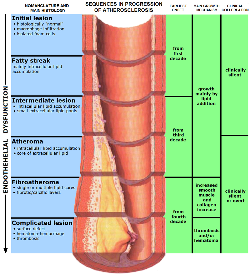 Difference Between Atheroma and Atherosclerosis