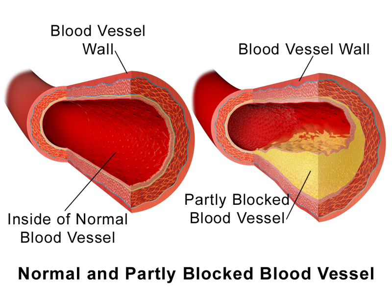 Main Difference - Atheroma vs Atherosclerosis