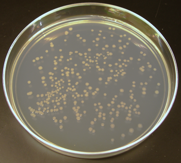 Key Difference - Bacterial vs Fungal Colonies