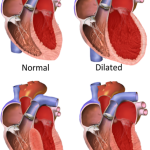 Difference Between Cardiomyopathy and Congestive Cardiac Failure