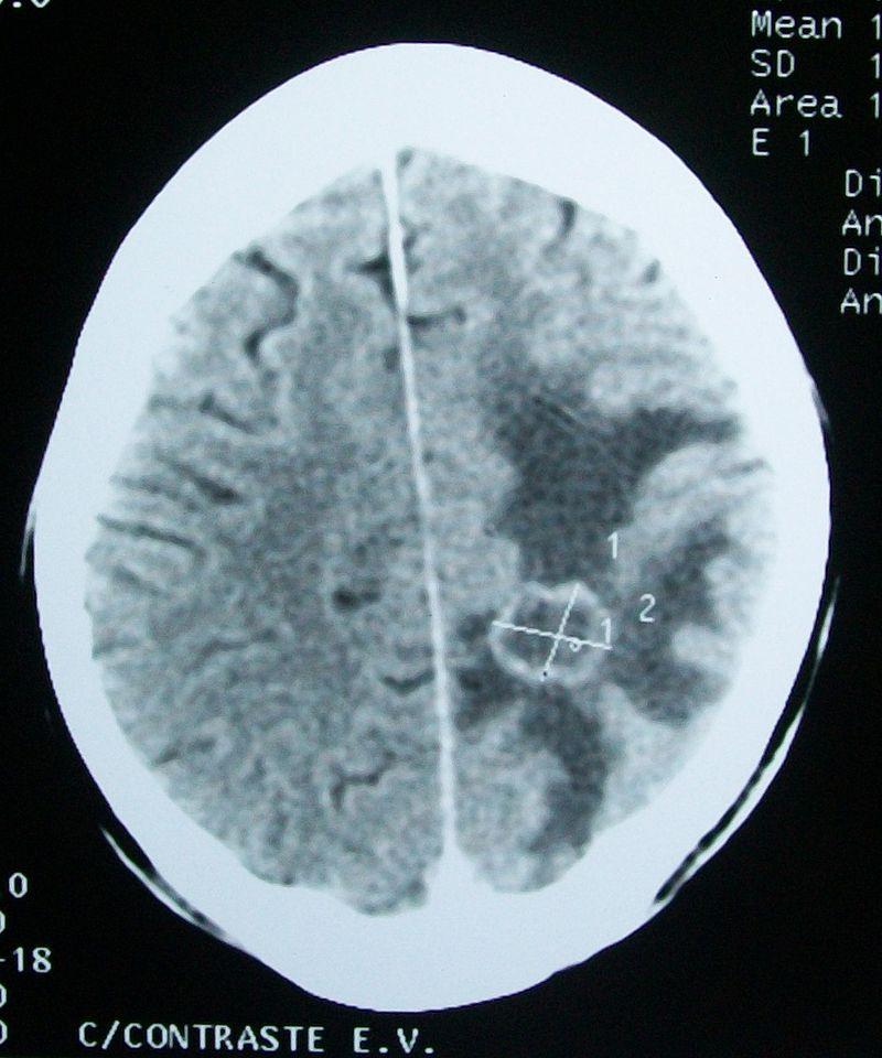 Key Difference - Cerebral Edema vs Hydrocephalus