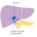 Difference Between Liver Cirrhosis and Liver Cancer