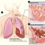 Difference Between Pneumonia and Walking Pneumonia