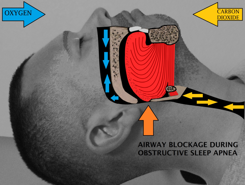 Difference Between Apnea and Dyspnea