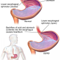 Difference Between GERD and Acid Reflux