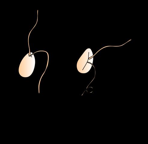 Key Difference - Zoospore vs Zygote