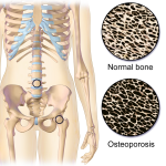 Difference Between Arthritis and Osteoporosis