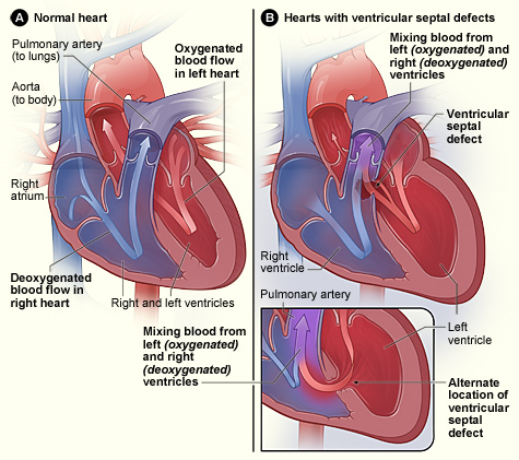 Key Difference - Cyanotic vs Acyanotic Congenital Heart Defects