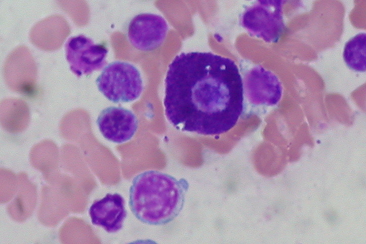 Key Difference -Giemsa Stain vs Wright Stain