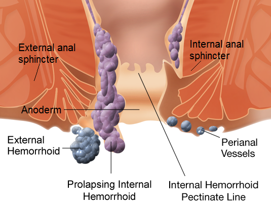 Difference Between Hernia and Hemorrhoid