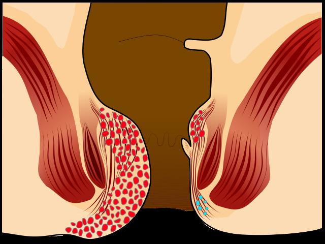 Key Difference - Piles vs Fistula