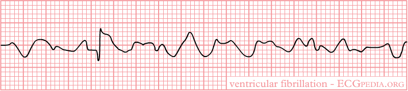 Difference Between AFIB and VFIB and SVT_Figure 02