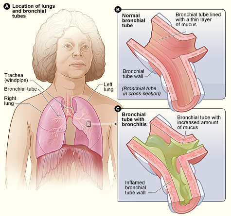 Difference Between Bronchitis and Bronchiectasis