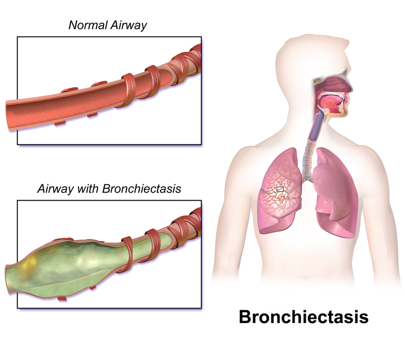 Key Difference - Bronchitis vs Bronchiectasis