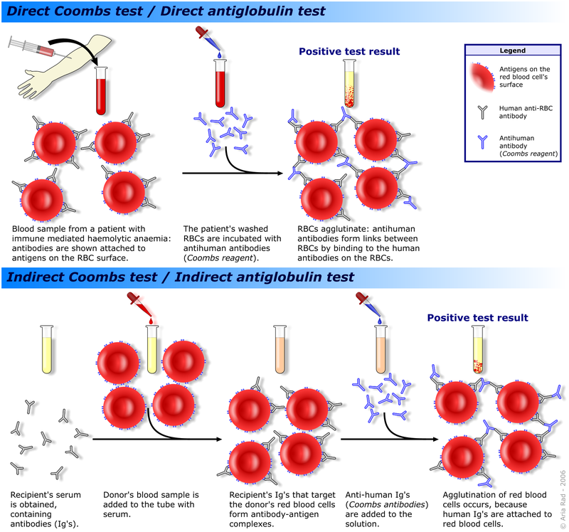 Difference Between Complete and Incomplete Antibodies