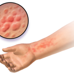 Difference Between Hives and Scabies